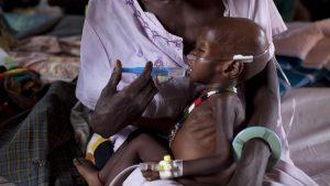 malnutrition-soudan