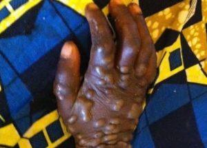 variole-du-singe